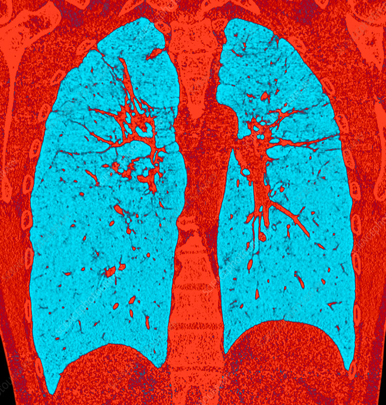 Fibrous pulmonary sarcoidosis, coloured CT scan