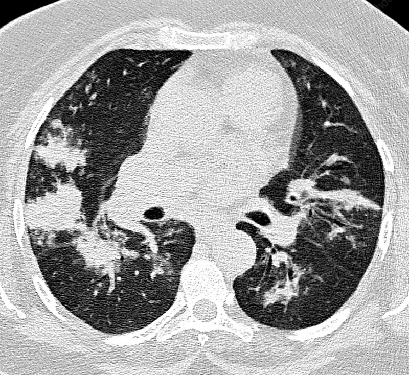 Bacterial pneumonia, CT scan