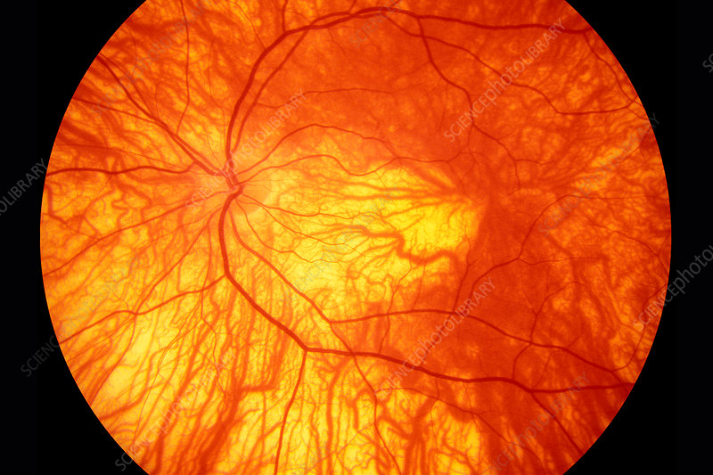 Retinal blood vessels in albinism, fundus image