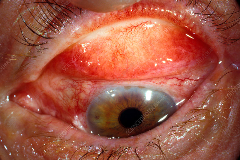 Trachoma eye infection