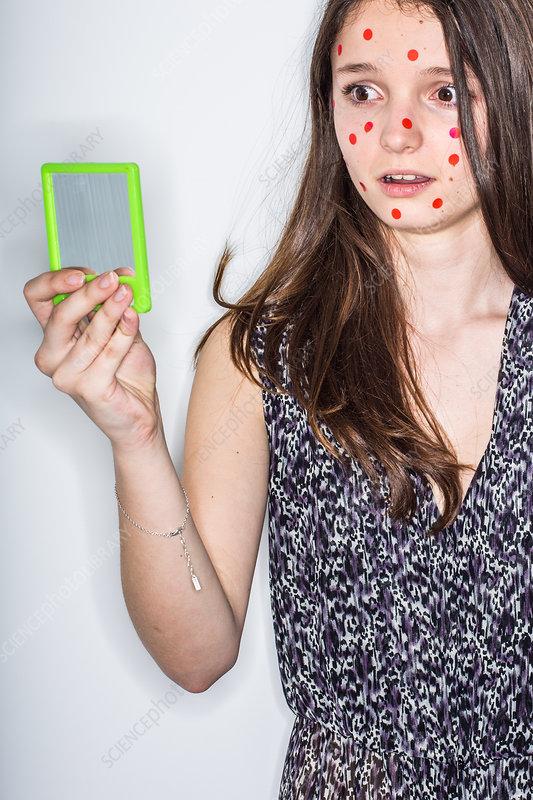 Humorous image of a teenage girl with pimples on the face