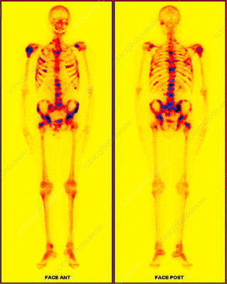 Secondary bone cancer, PET scan