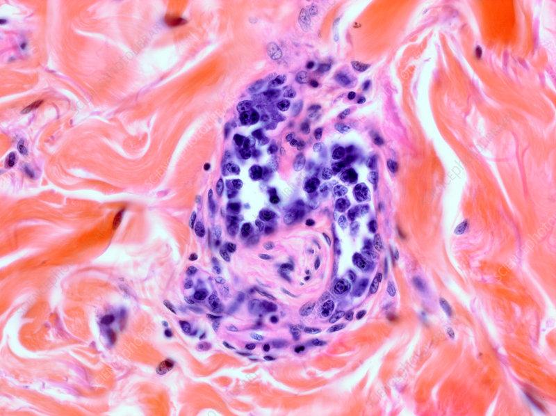 Dermal intravascular lymphoma, light micrograph