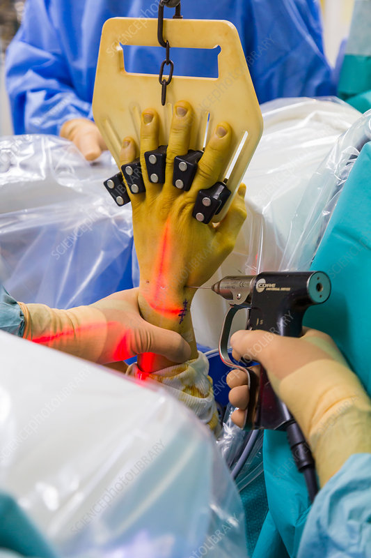 Hand arthroscopy