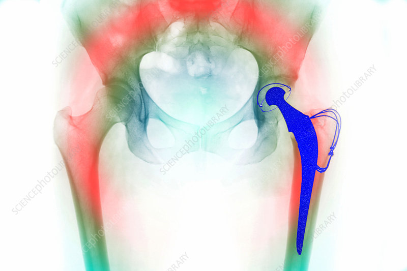 Total hip replacement, X-ray