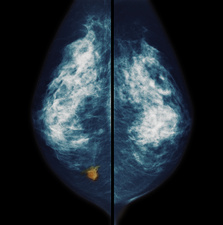 Breast cancer, mammogram