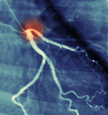 Coronary angiogram