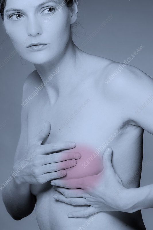 Breast cancer, conceptual image