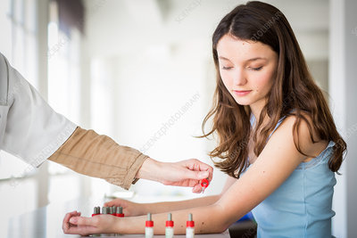 Teenage girl undergoing skin prick test