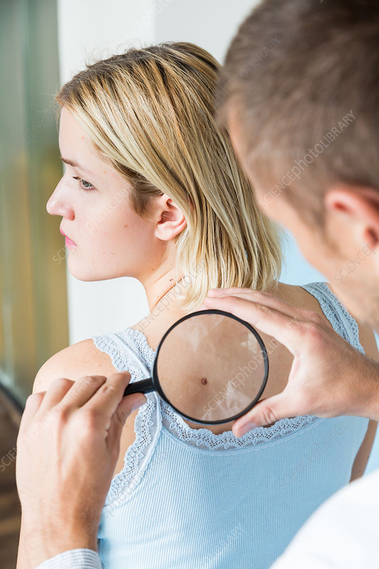 Doctor examining the skin of a woman
