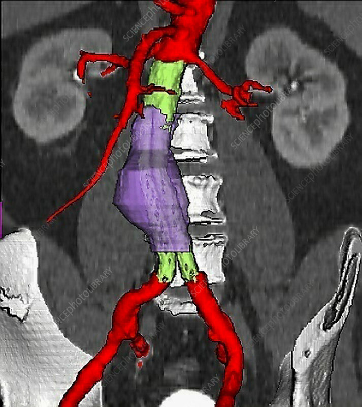 Abdominal aortic aneurysm and stent, CT scan