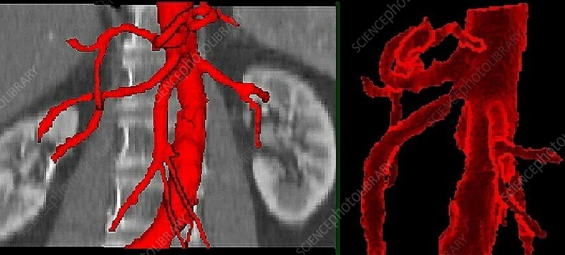 Stenosis, CT scan