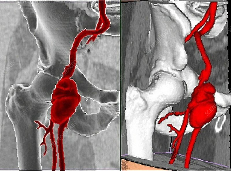 Right femoral infectious aneurysm, CT scan