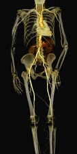 Human body, CT scan