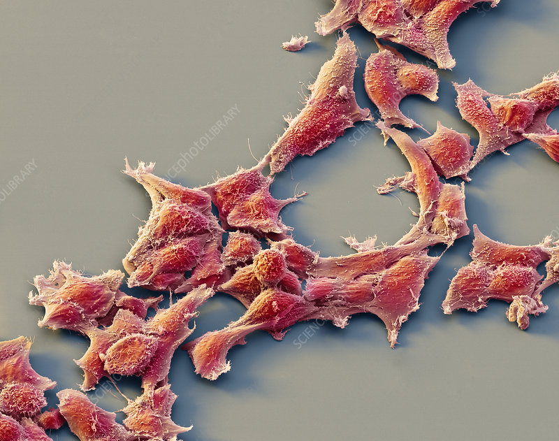 Alveolar rhabdomyosarcoma cancer cells, SEM