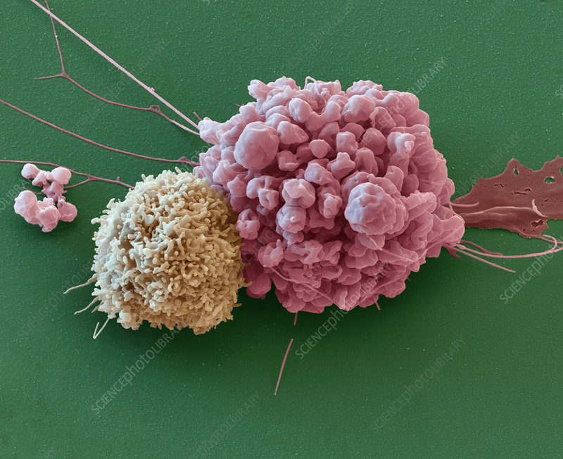 Nervous system tumour cell, SEM