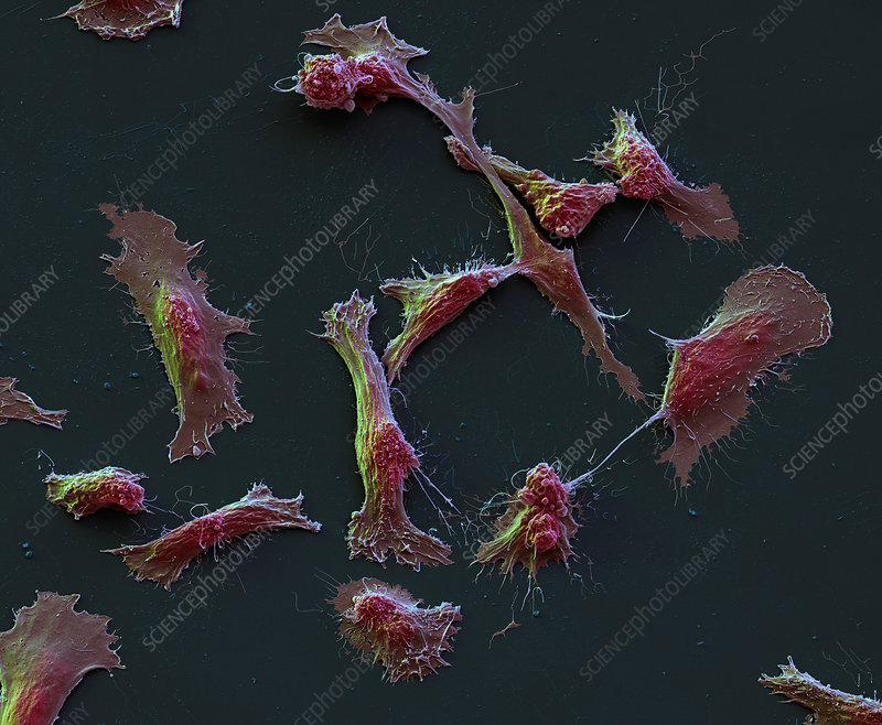 Rhabdomyosarcoma cancer cells, SEM