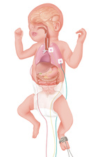 Premature baby, illustration