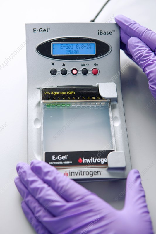 Stem cell electrophoresis analysis