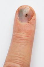 Blackened fingernail