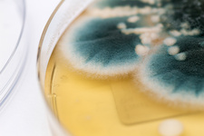 Aspergillus and Candida albicans cultures