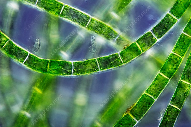 Spirogyra conjugating, polarised light micrograph