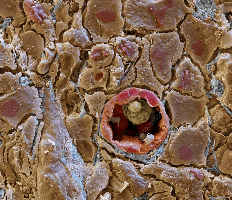 Blood vessel in cancerous tissue, SEM