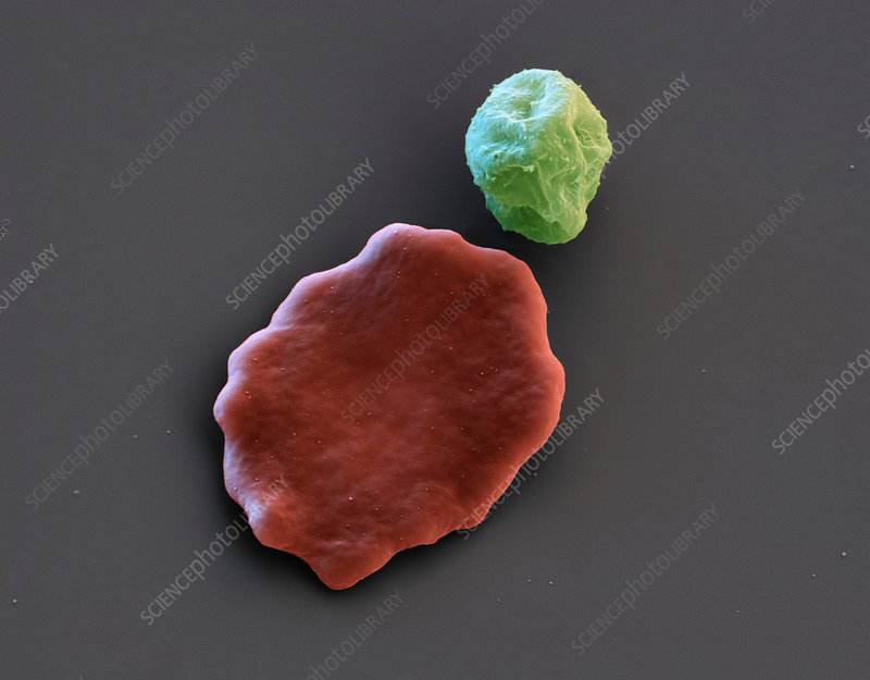 Malaria-infected red blood cell, SEM