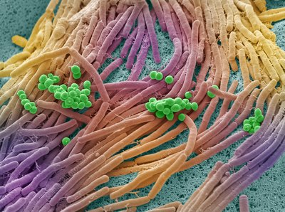 Bacteria found on mobile phone, SEM