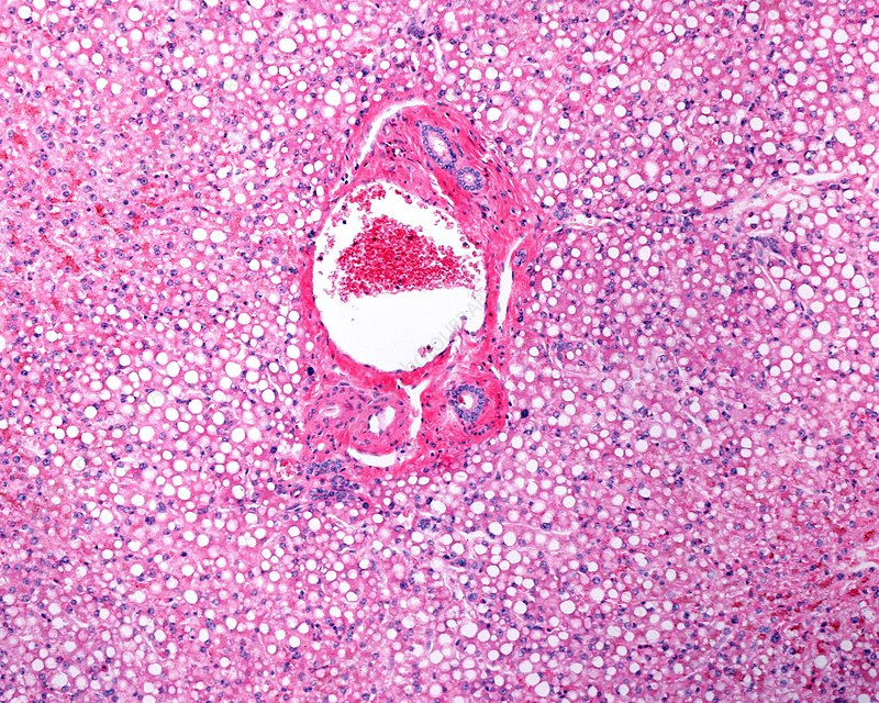 Fatty liver, light micrograph