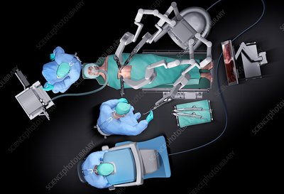 Robotic surgery, illustration