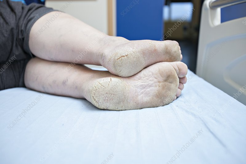 Dry and cracked feet in diabetes