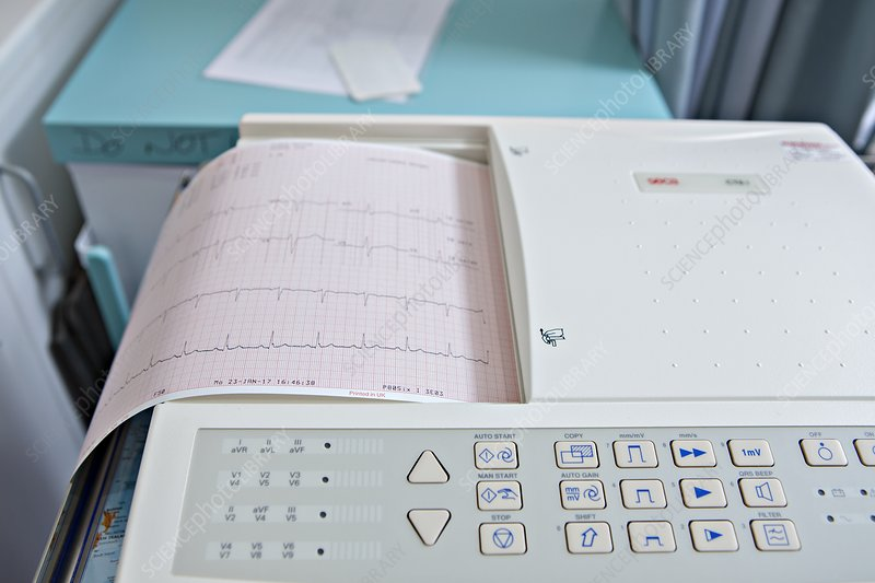 Electrocardiography test results