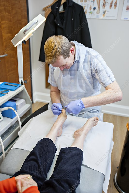 Chiropody treatment