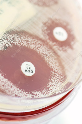 Staphylococcus culture and antibiotics
