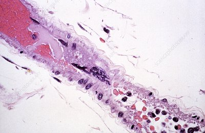 Nipah virus infection, light micrograph