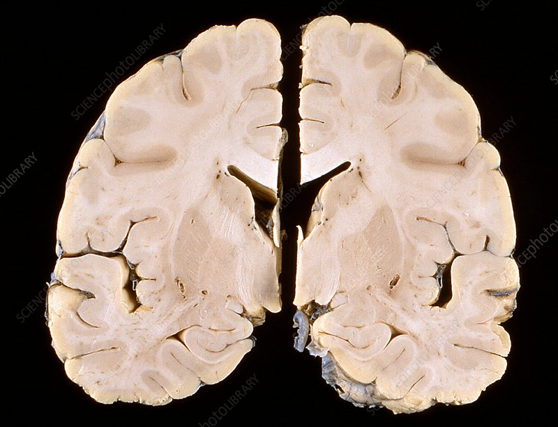 Nipah virus infection, brain specimen