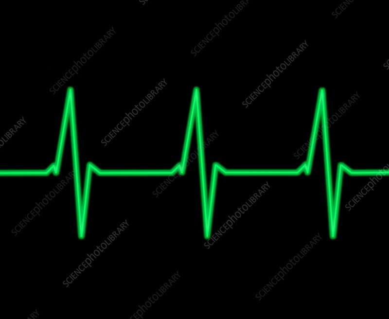 ECG heartbeat trace, illustration