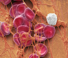 Blood from wound site, SEM