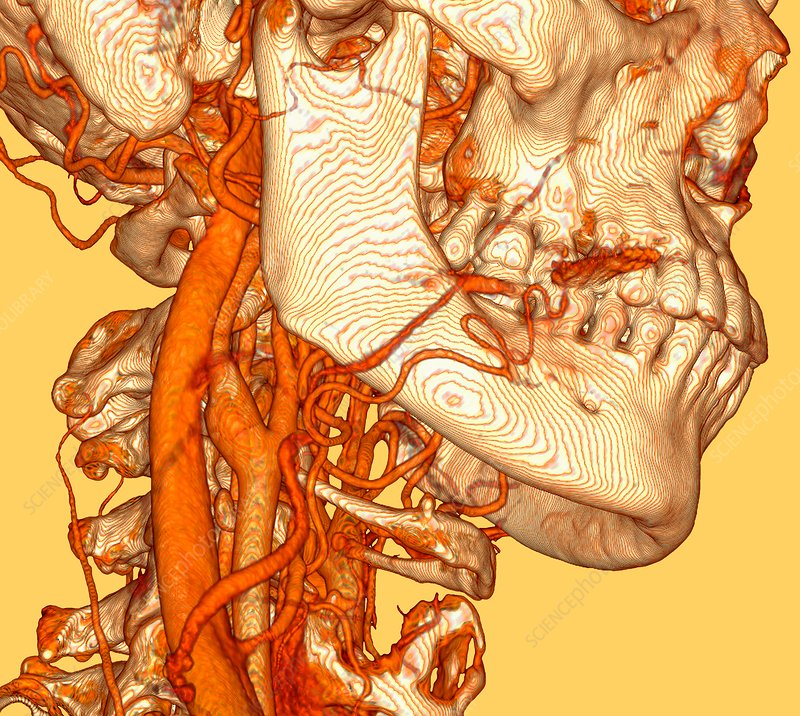 Neck blood vessels, 3D CT scan