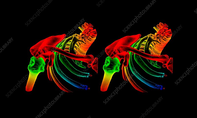 Shoulder bones, CT stereograms