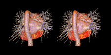 Heart and pulmonary blood vessels, CT stereograms