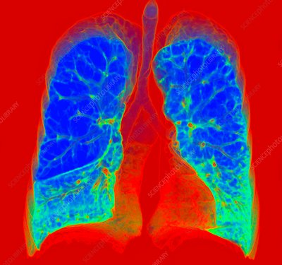 Smoker's lungs and emphysema, illustration