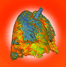 Interstitial lung disease, illustration