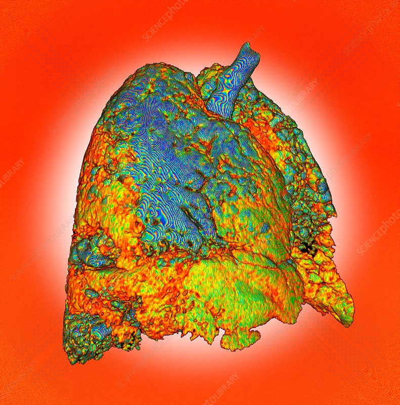 Interstitial lung disease, 3D CT scan
