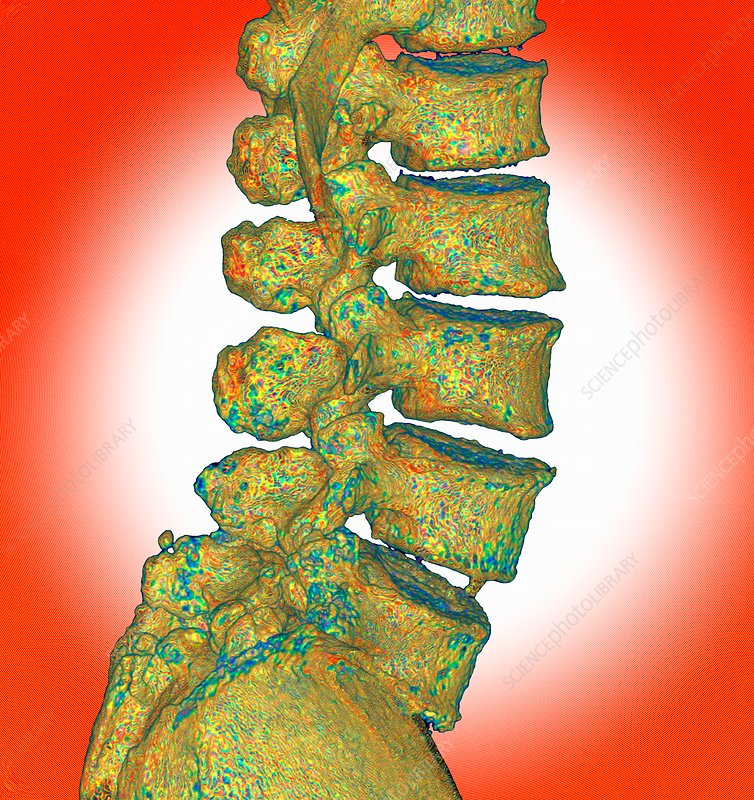 Lumbar spine degeneration, 3D CT scan