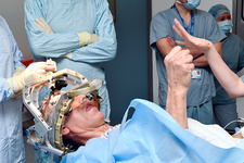 Deep brain stimulation surgery