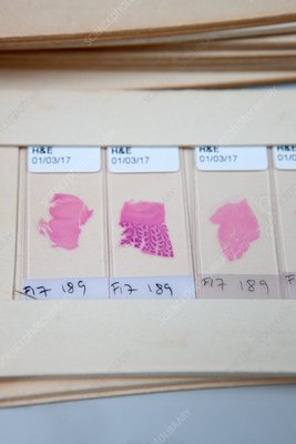 Dyed brain and tissue specimens