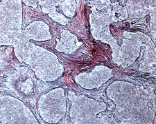 Pineal gland reticular fibres, light micrograph