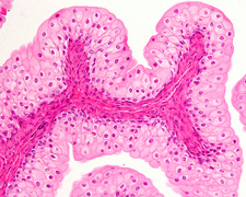 Urinary bladder epithelium, light micrograph